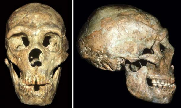 The skull of the Neandertal known as Shanidar 1 show signs of a blow to the head received at an early age. (Image: Courtesy of Erik Trinkaus)