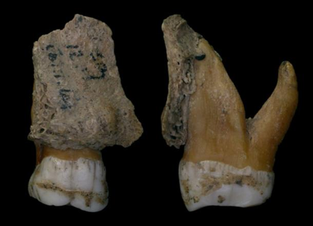 Neanderthal teeth from Spy with dental calculus deposit seen as the rind layer on tooth enamel. Royal Belgian Institute of Natural Sciences, Author provided
