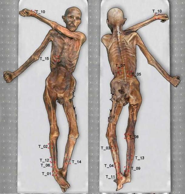 Ötzi the Iceman's body with 61 tattoos.