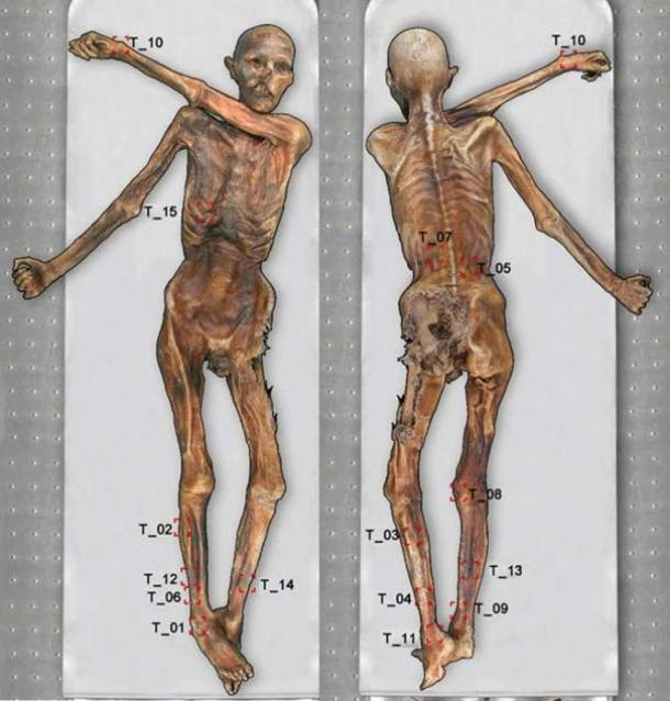 Ötzi the Iceman's body with 61 tattoos.