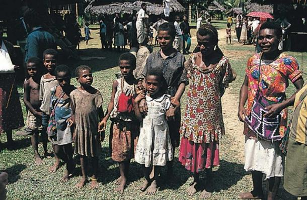 Papua New Guineans in 2005. A typical scene in a village that has lost many of its young men to the towns as rural-urban migrants. The population structure of such villages is quite unbalanced. (Stephen Codrington/CC BY 2.5)
