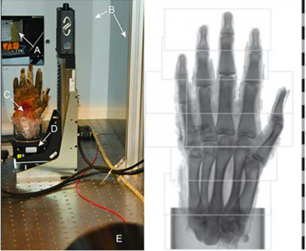Left: Photograph of the phase-contrast imaging arrangement as viewed from the detector: x-ray source with output window (A), radiation shielding around source and experimental arrangement (B), sample placed in a plastic cylinder and padded with plastic foam (C), rotation stage (D) and an x-ray camera (E). Right: Regions for tomographic scans. For the imaging of the hand, a total of nine tomographic scans were performed. Here, the field of view for each scan is shown. Before tomographic reconstruction, the left regions of the fourth and fifth scan from the bottom were stitched together with their respective right counterpart. The scale shows centimeters.