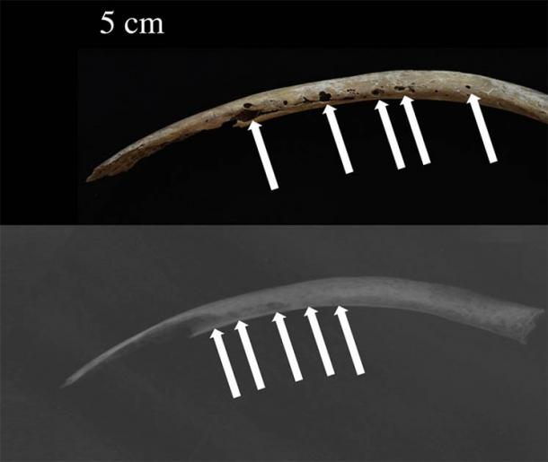 Photograph (above) and X-ray (below) of the rib shaft of the ancient Bronze Age man showing osteolytic lesions. (Jenna Dittmar / Science Direct)