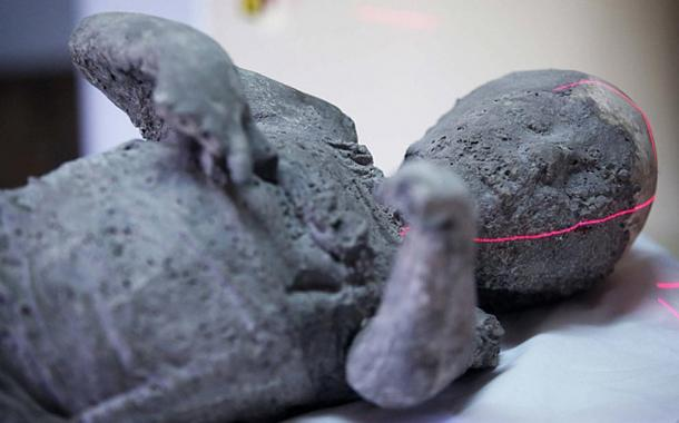 Ancient Pompeii Victims Reveal Great Teeth and Good Health