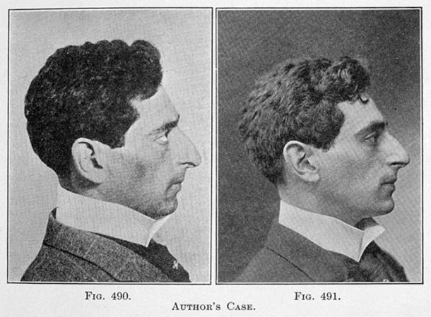 """From the book """"Plastic and Cosmetic Surgery"""" by F. Strange Kolle 1871-1929 -Nose correction (Wellcome Collection Gallery / CC BY-SA 4.0)"""