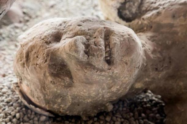 Plaster cast of a Pompeii victim, still with a grimace on his face.