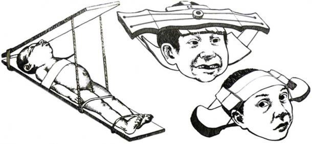 Possible methods used by the Collagua people to shape a child's head.