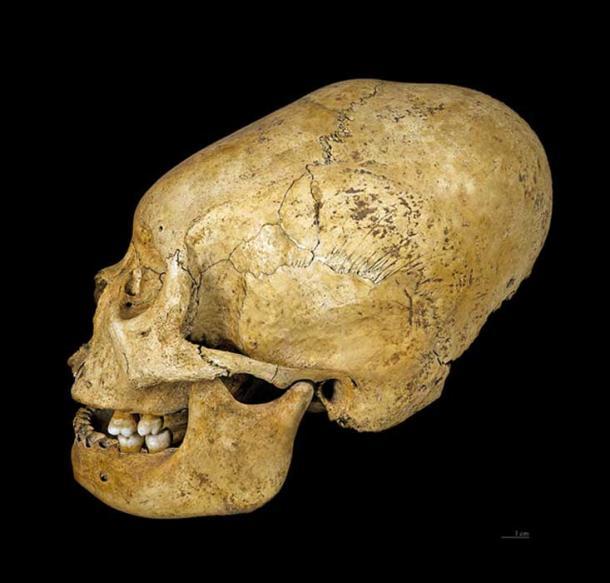 Proto Nazca deformed skull, c 200-100 BC.
