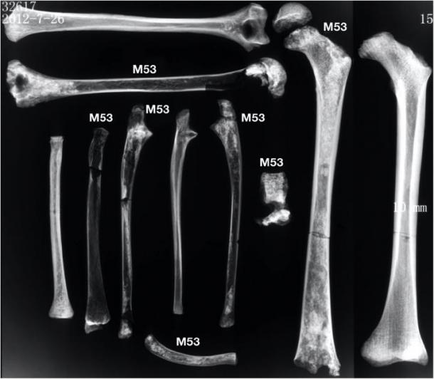 Radiographs of the long bones show osteopenia compared to a 12 year old comparative archaeological individual with non-pathological bone. (Image: CC BY 4.0)