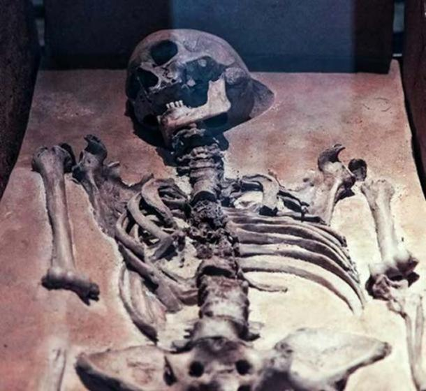 Representative image of an old skeleton. (Public Domain/Detail)