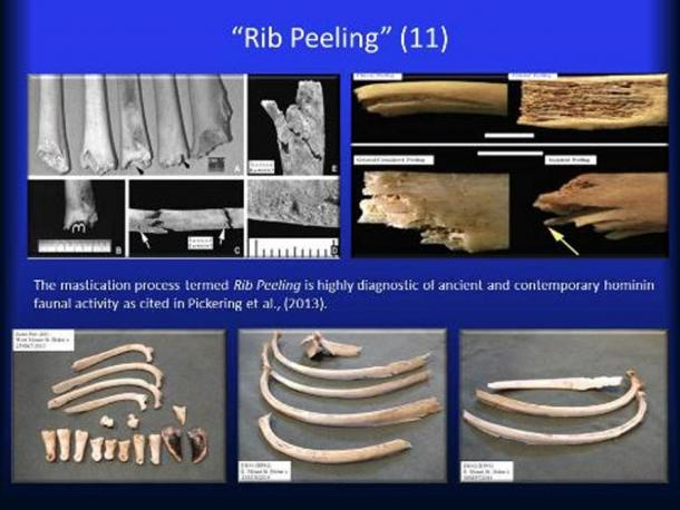 Rib Peeling.
