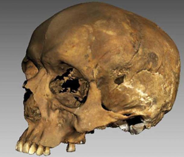 The 3d image of Richard's skull.