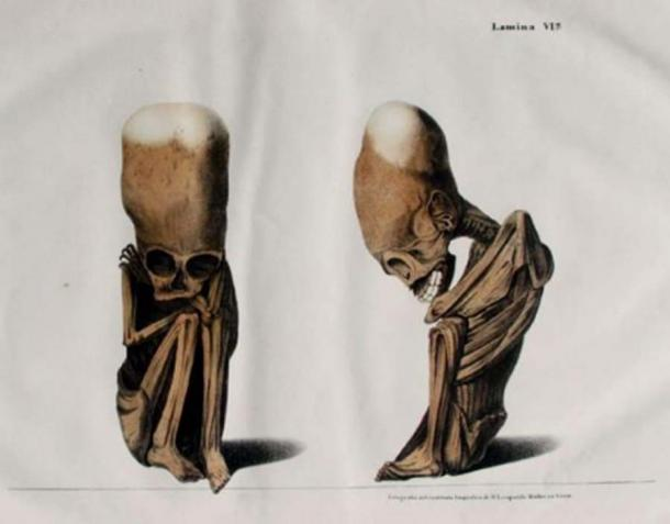 """Rivero and Tschudi's fetus with naturally elongated head from their 1851 """"Antigüedades peruanas"""". (Public Domain)"""