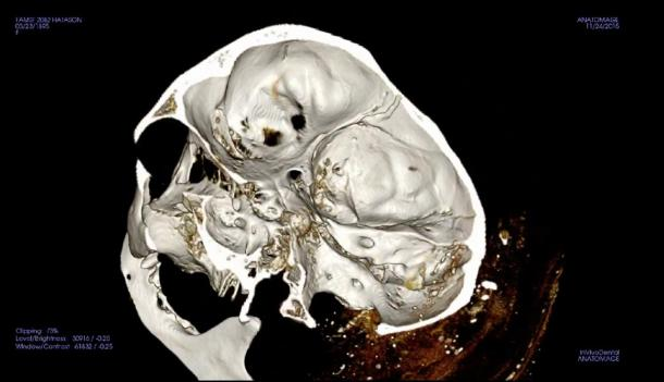 Scan of a mummy's skull from the Fine Arts Museum of San Francisco, captured in a screen shot from a video at the Stanford News press release.