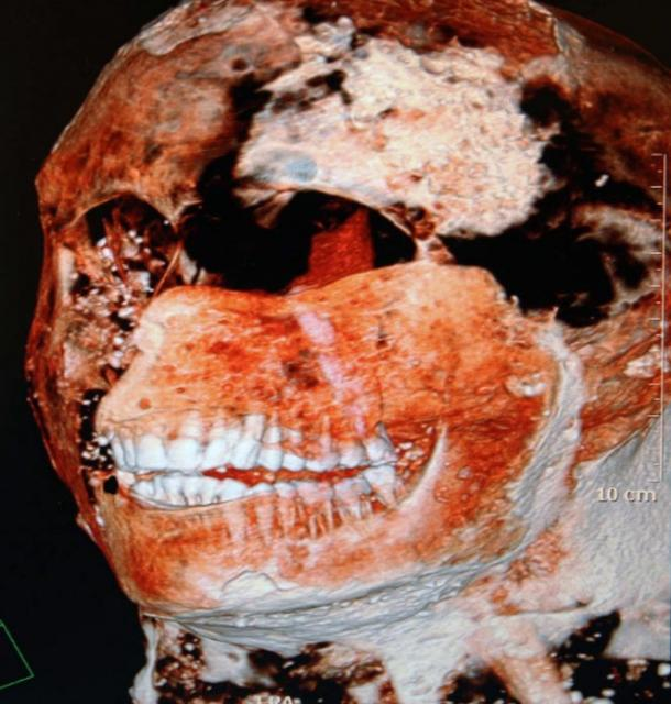 Scan of one of the plaster casts from Pompeii revealing a healthy set of teeth.