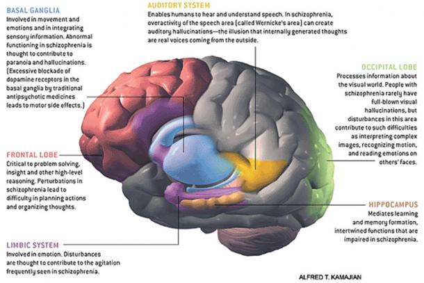 'The Brain in Schizophrenia.' (Jurgitta/CC BY SA 4.0) Many regions and systems of the brain operate abnormally in schizophrenia, including those presented in this image