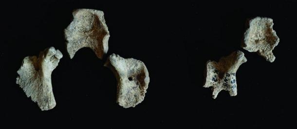Left: Segments of the occipital bone from fetus 1. Right: Segments of the occipital bone from fetus 2.