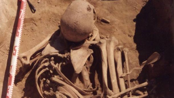 4,500 year old bones of Siberian man reveal he died of cancer