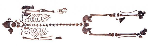 Skeleton of the girl found in the bog near Uchte, Germany.