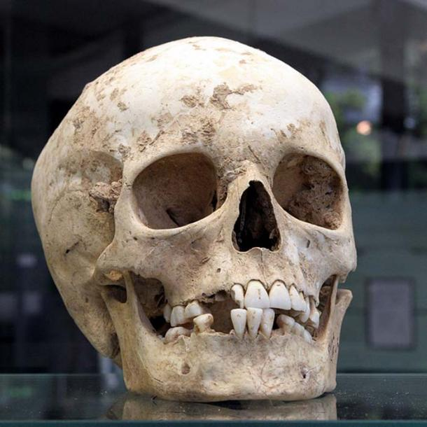 Skull found in the archaeological site of Herxheim.
