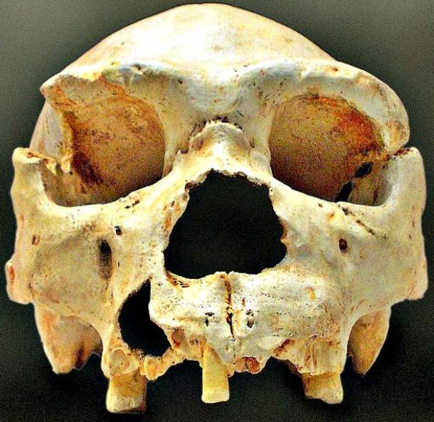 Skull number 5 of the Pit of Bones, as it appeared in the campaign of 1992. In later campaigns the jaw was exhumed.