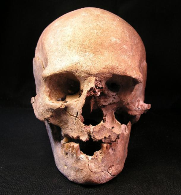 Skull of a 40-49-year-old female that was buried in the Gross Fredenwalde cemetery.
