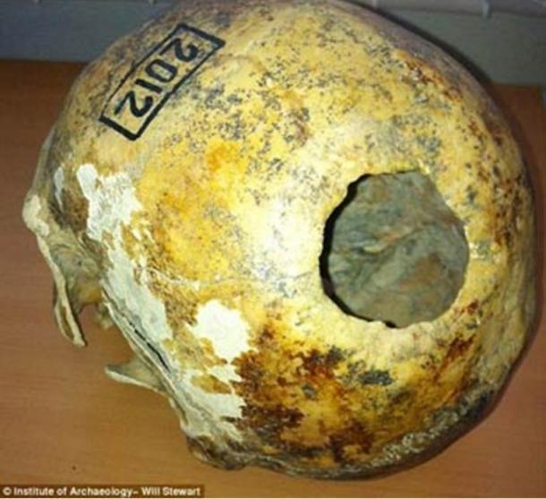 Cráneo del hombre de mediana edad con pruebas de trepanación que se encuentra en las montañas de Altai de Siberia