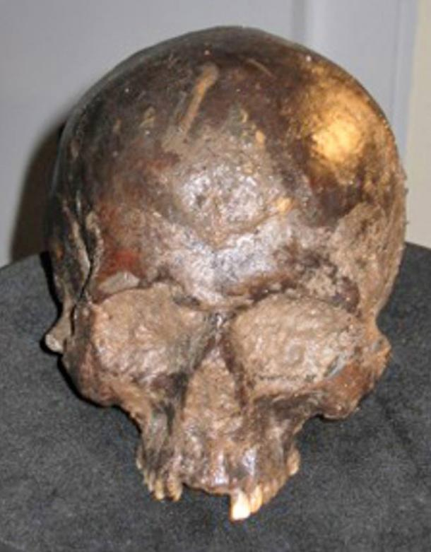 Skull recovered from the Iron Age pit dig in Heslington, Yorkshire, in England.