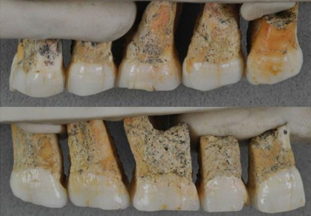 Teeth of Homo luzonensis found – evidence of the new species of human. (Florent Détroit / © Callao Cave Archaeology Project)