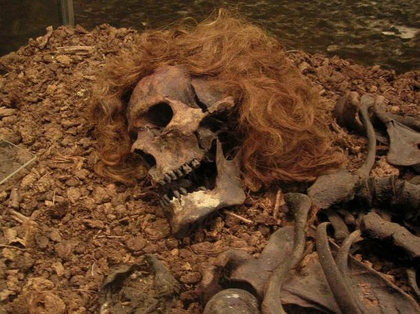 The Bocksten Man is the remains of an ancient male body found in a bog in Sweden.