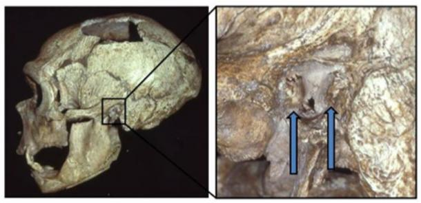"The La Chapelle-aux-Saints Neandertal skull, with the external auditory exostoses (""swimmer's ear"" growths) in the left canal indicated. (Erik Trinkaus)"