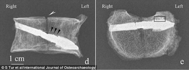 The arrow pierced the bone from above from the right to the left (Image: International Journal of Osteoarchaeology)
