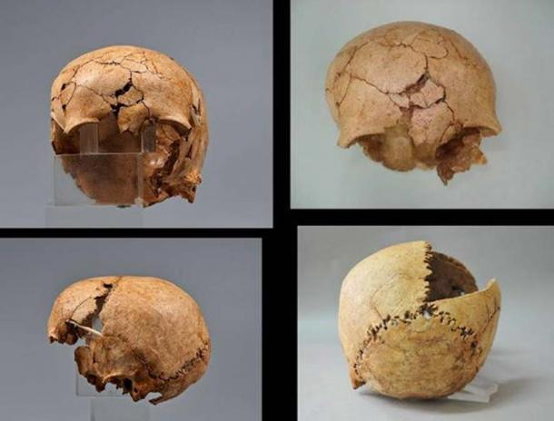 The broken skull of a young girl was found among animal skulls.