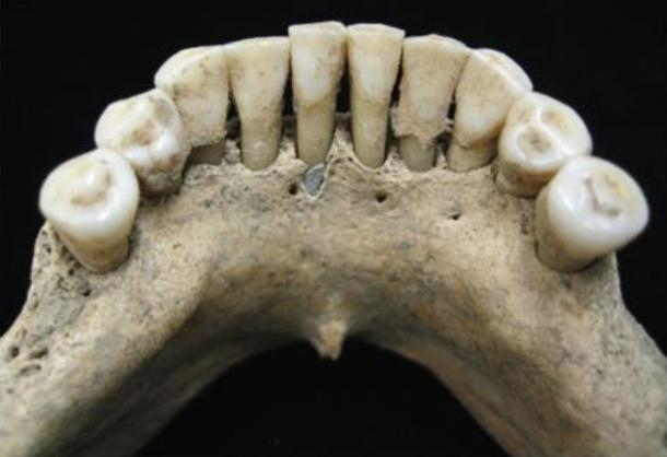 The dental sample of the female found with lapiz lazuli pigment. Image: C. Warinner, Institute for Evolutionary Medicine, University of Zürich, via Science Advances CC BY NC 4.0
