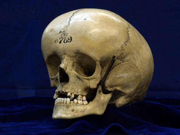 The enlarged skull of a person with hydrocephalus. (CC BY 2.0)