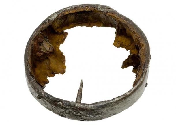 The iron ring that reinforced the prosthesis