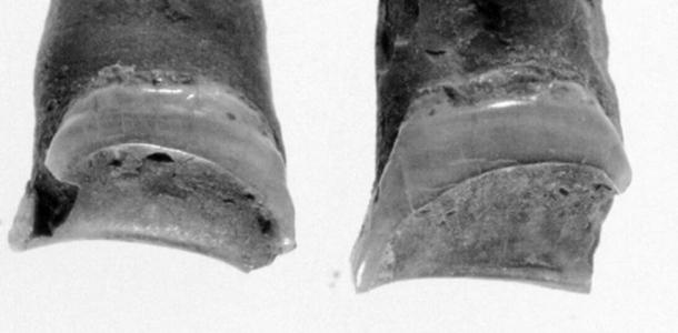 The pattern of wear observed on the woman's teeth. (Lovell & Palichuk, Bioarchaeology of Marginalized People, 2019)