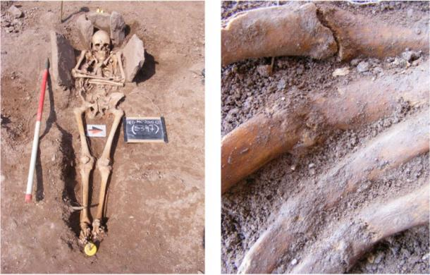 The possible knight at left. At right are his fractured and unhealed ribs.