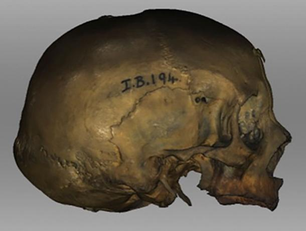 The reconstruction was based on this female druid skull from Stornaway in the Hebrides. (University of Dundee)