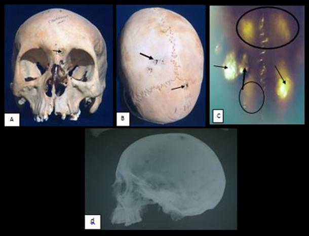 The skull of a woman in her 20s showed she suffered from a cancer that had spread to her head. She may have had the HPV virus. Image credit: El Molto