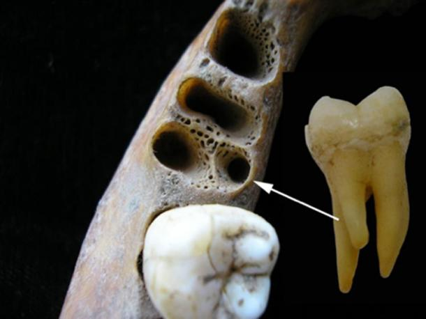 The three-rooted lower molar anomaly in a recent Asian individual. Left: tooth sockets showing position of accessory root; right: three-rooted lower first molar tooth. (Christine Lee)