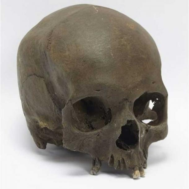 The woman's skull was deliberately severed from her body.