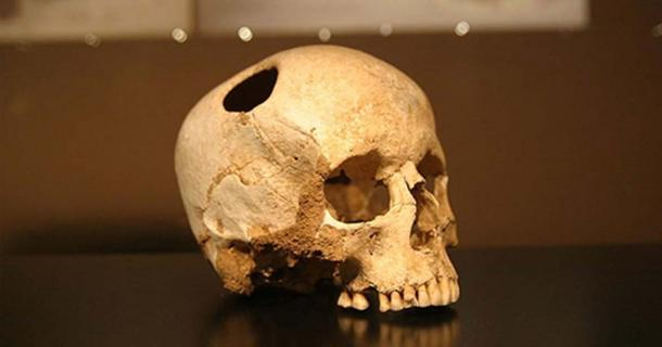 There is evidence of this kind of surgery much earlier. For example, this trepanned skull of a girl who lived 5,500 years ago. She survived the surgery. Natural History Museum, Lausanne ( CC BY SA 2.0 )