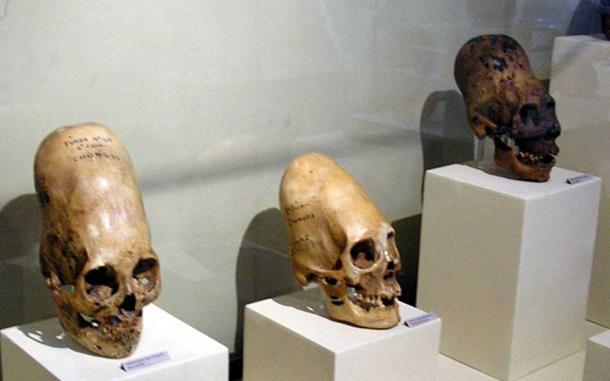 These skulls are on display at Museo Regional de Ica in the city of Ica in Peru.