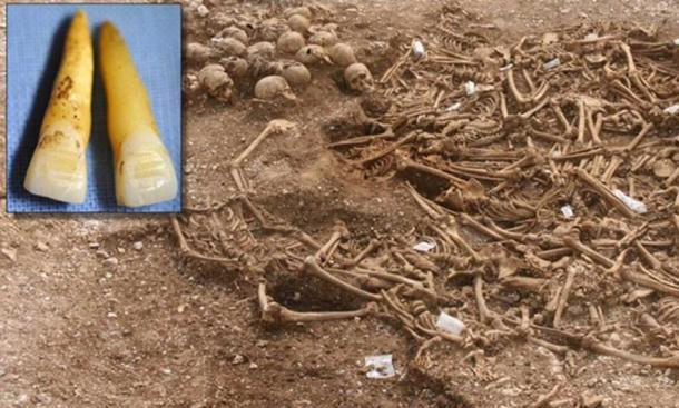 These teeth were found in the Dorset Viking Age mass grave. (Photo: Oxford Archeology)