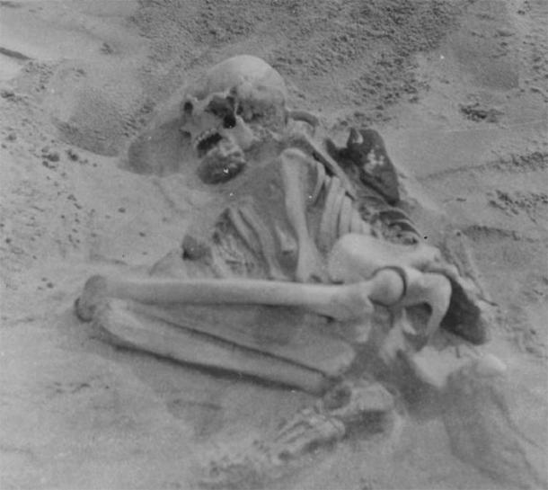 The 5,000-year-old Tiree skeleton was also buried in the fetal position. (The Hunterian)