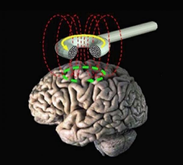 Transcranial magnetic stimulation - schematic diagram. (Eric Wassermann, M.D. / Public Domain)