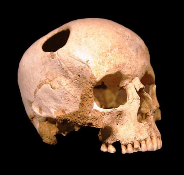 Trepanated skull of a 50-year old woman, found in tumb 3 Corseaux-En Seyton (3500 BC). Cicatrisation of the bones indicate the patient survived. (CC BY-SA 3.0)