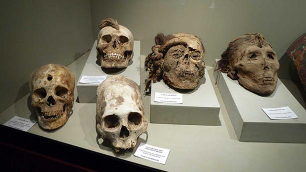 Trophy heads with ropes and holes, and a deformed/manipulated skull unearthed near Nazca. (CC BY-SA 2.0)