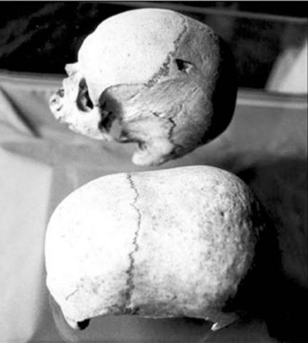 Two of Malta's mysterious skulls, the dolichocephalous (long-headed) one below. (Adriano Forgione)